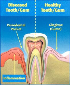 arestin-gun-disease-diagram