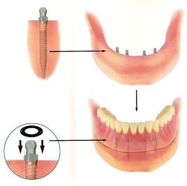 Marietta Dentures Dentist
