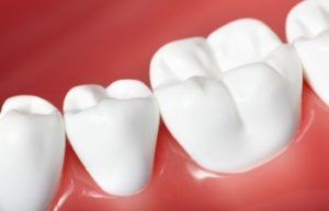 Vinings GA Dentist