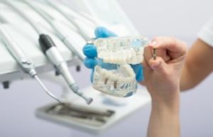 Atlanta GA Restorative Dentist in Vinings