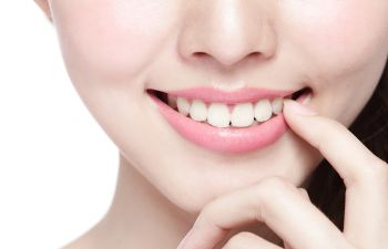 Closeup of Woman Smiling After Porcelain Veneers and Bonding