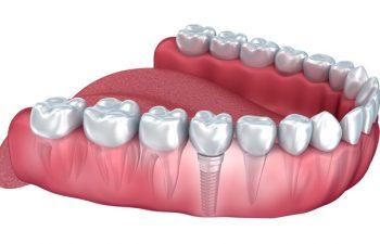 Implant Model Atlanta GA