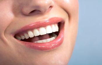 Dental Bonding Atlanta GA